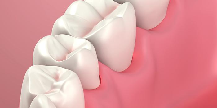 顎偏位の治療法