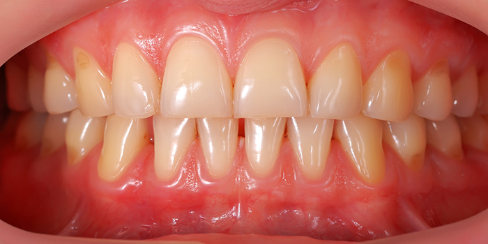 口元に大きな悪影響!ガミースマイルの原因と治療法