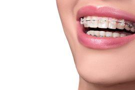 歯列矯正中でも気楽に食べられるメニューをご紹介!