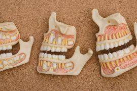 「自律神経失調症」と診断されたら疑いたい顎関節症