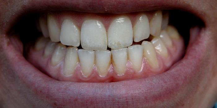 危険性が高い! 歯ぎしりなどの「咬合神経症」とは