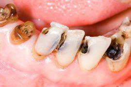 徐々に進む虫歯の恐怖!虫歯の進行段階と症状