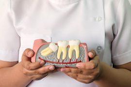 虫歯や炎症のリスクを減らす!親知らずの正しい磨き方