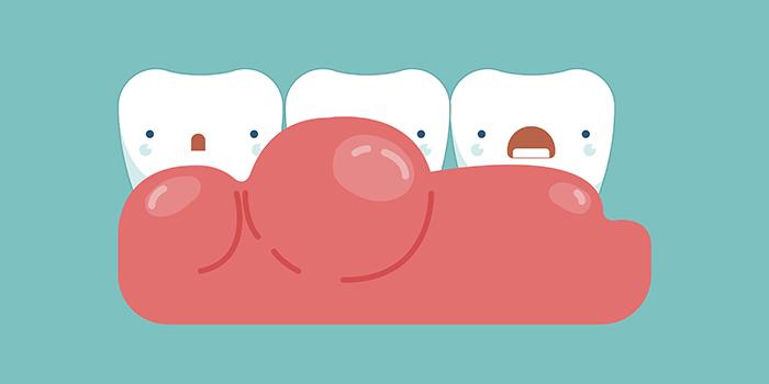 「歯茎」を知り、歯みがきを知る。歯茎に効果的なブラッシングとは