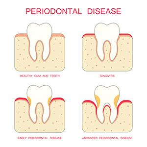 放っておくと歯が抜け落ちるかも? 歯槽膿漏の症状と予防方法