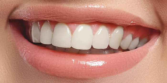 日本人の歯並びの特徴と、歯並びへの意識