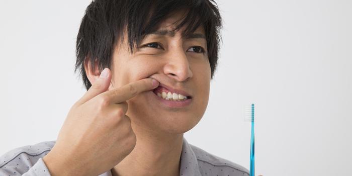 ガチャガチャ歯並び「乱杭歯」を矯正すべき理由と矯正方法