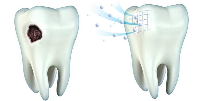 歯を強くしてくれるキシリトールガムの特徴