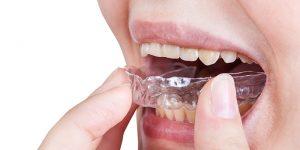 日本人は歯並びに無頓着? 外国人から見た日本人の歯並び