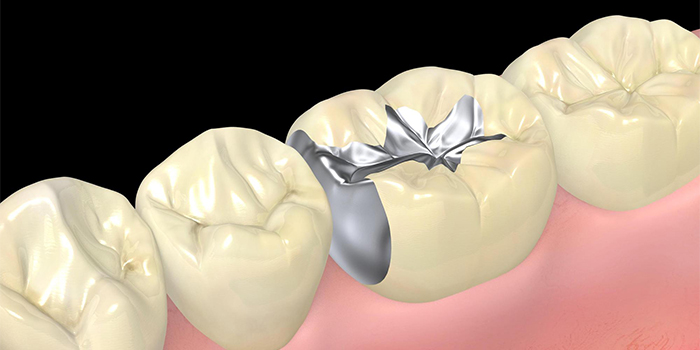 歯の詰め物が取れる原因と取れた後にしてはいけないこと