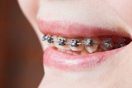 クレンチング症候群は歯と顎に悪影響を及ぼす! その症状と原因とは