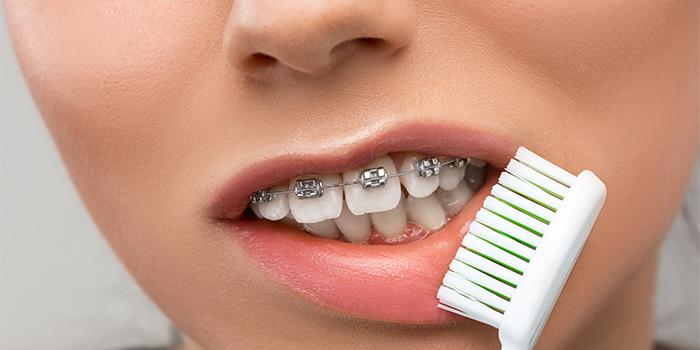 ブラケット(矯正装置)を装着している時の正しい歯磨きやケアとは?