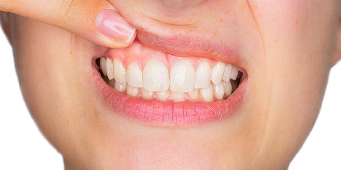 「歯を抜かない歯列矯正」その特徴と治療法、注意点とは?