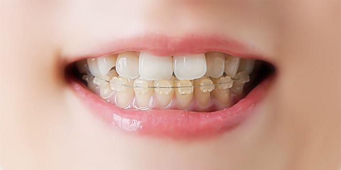 前歯の歯並びの悪さが気になる……見た目を損ねない矯正治療とは?
