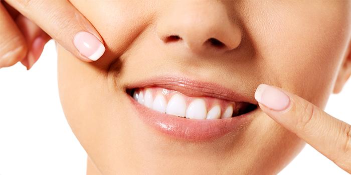 「歯列矯正」と「差し歯」歯並びを治すならどっちが良いの?