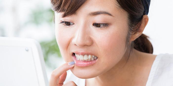 酸蝕歯はどうして起こる? 原因と予防法