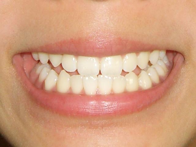 抜かない矯正を行う歯科医をお探しならさいたま市の【くろさき歯科】へ~子供の乱ぐい歯を解消しよう~