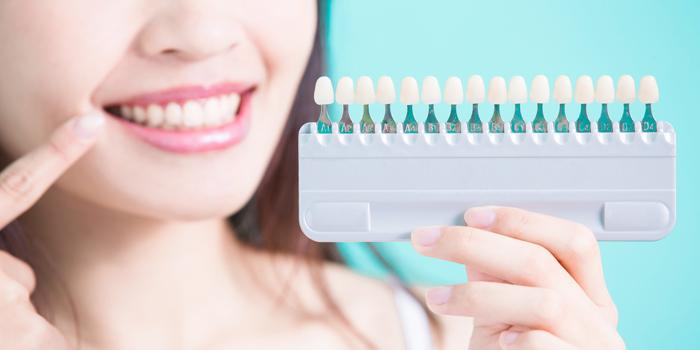 着色した歯にはホワイトニングを施そう